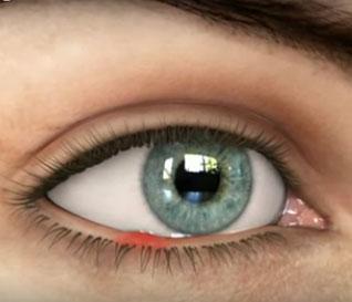 чем лечить ячмень на глазу в домашних условиях быстро